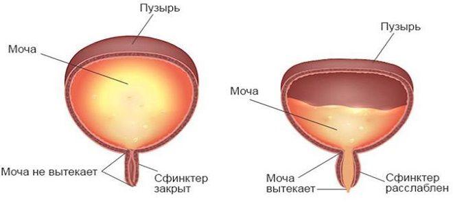 нейрогенная дисфункция мочевого пузыря