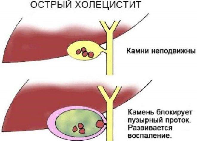 воспаление желчного пузыря симптомы