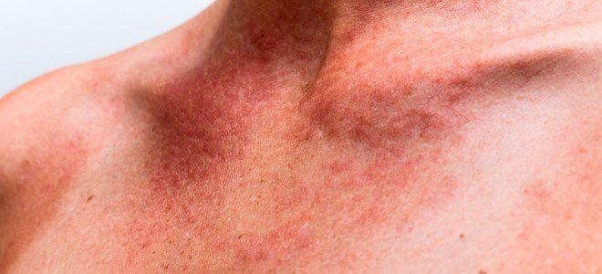 Симптомы болезни печени. Заболевания печени – симптомы и признаки ...