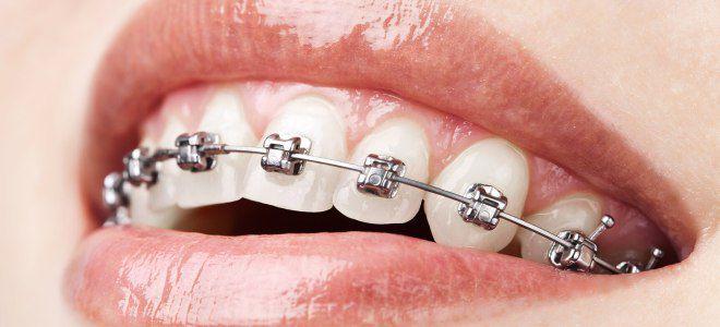 Можно ли чистить зубы содой при брекетах