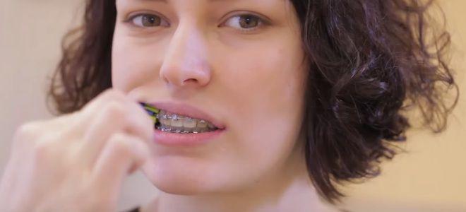 Как чистить зубы с брекетами зубной щеткой второй
