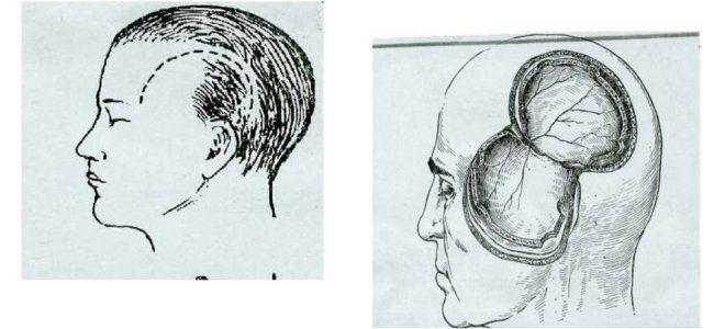 трепанация черепа виды