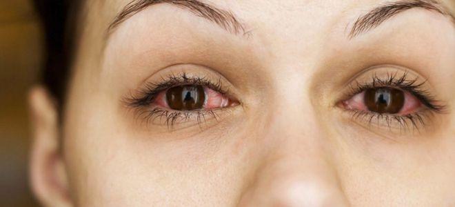 капли от аллергии в глаза аллергодил