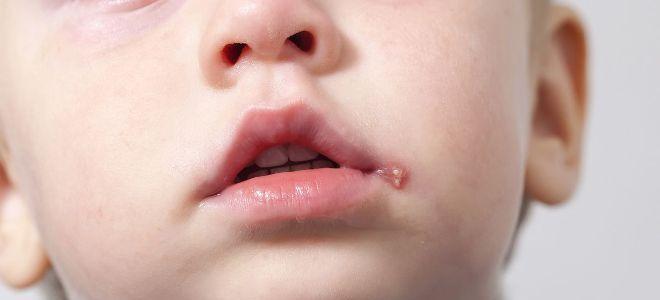 Сыпь при стрептодермии щелевидное импетиго два
