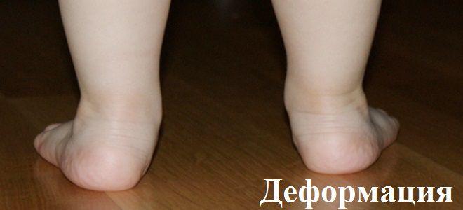 У ребенка заваливается стопа во внутрь фото