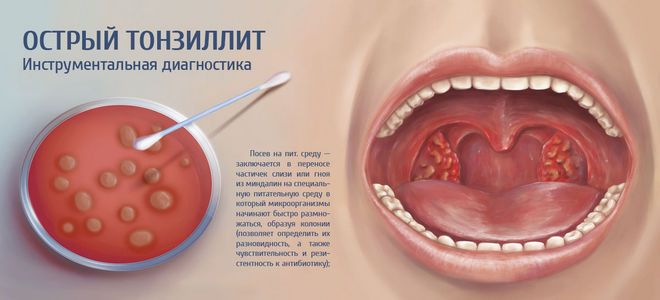 Хроническая ангина причины
