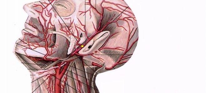 поражение сонной артерии