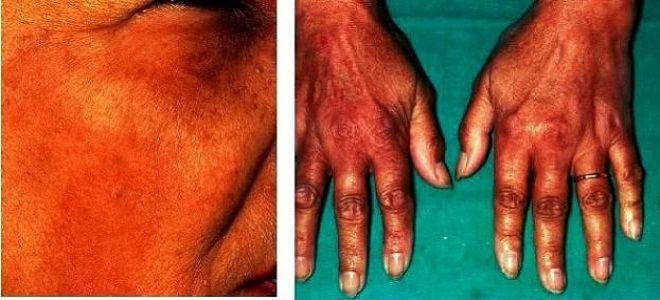 бронзовая болезнь