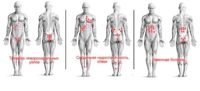 Гирудотерапия точки присасывания пиявок схемы три