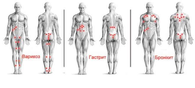 Гирудотерапия точки присасывания пиявок схемы пять