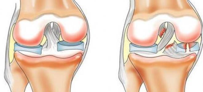 Первая помощь при травме мениска коленного сустава боли в суставах на ногах