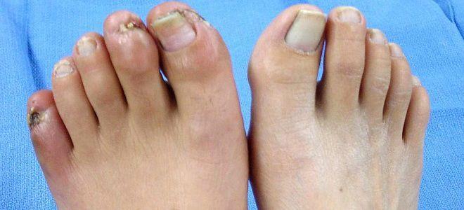 Симптомы ангиопатии нижних конечностей