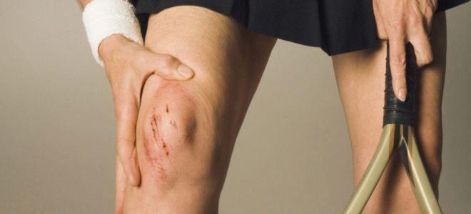 Киста бэйкера артрит коленного сустава гимнастика при заболевании тазобедренного сустава