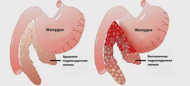как правильно лечить панкреатит