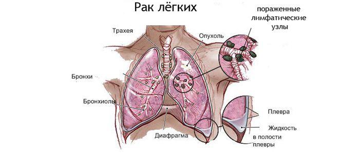 мелкоклеточный рак бронхов