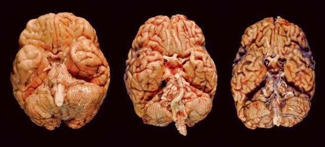 сифилис мозга