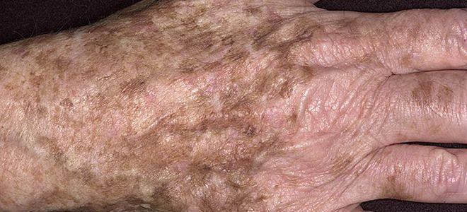 коричневые пятнышки на коже