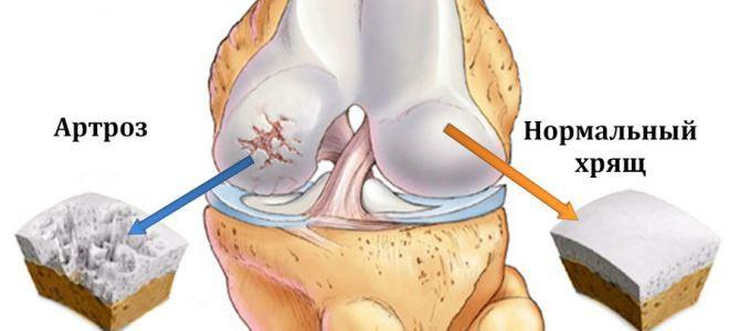Артроз коленного сустава внутрисуставныепрепараты ложный сустав плечевой кости лечение