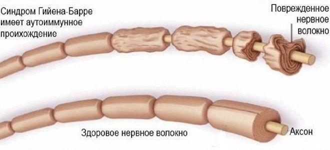 синдром гийена барре анализы