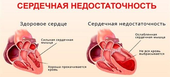 почему возникает сердечная недостаточность