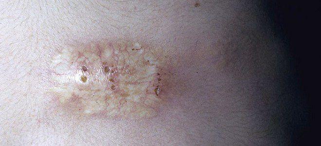 Очаговая склеродермия симптомы морфея