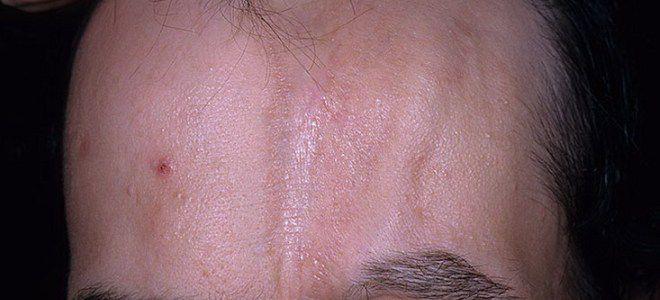 Очаговая склеродермия симптомы линейная