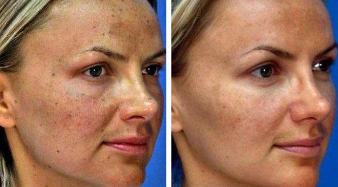 рад встрече карбокситерапия лица фото до и после предлагаемых