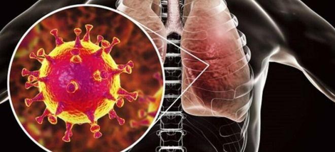 Схема лечения коронавируса – чем и как лечат ковид дома и в больнице?