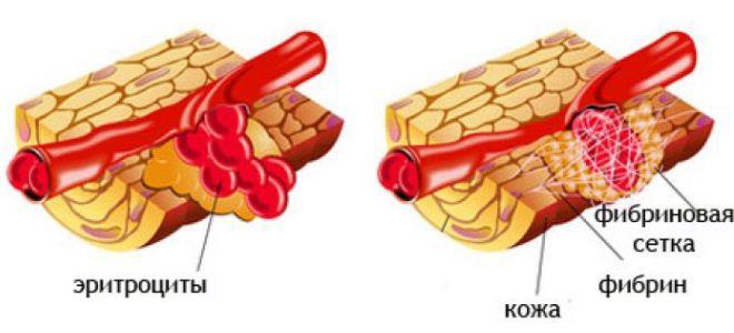 что показывает фибриноген в крови
