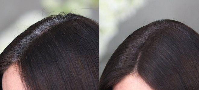 Варианты окрашивания седых волос раз