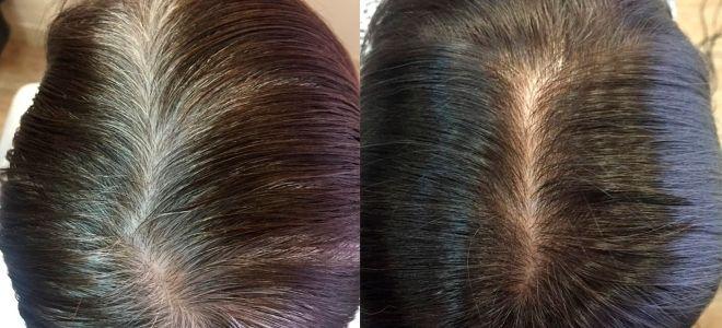 Варианты окрашивания седых волос два
