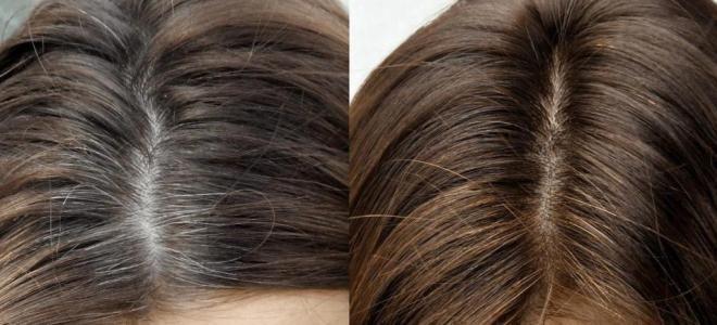 Варианты окрашивания седых волос три