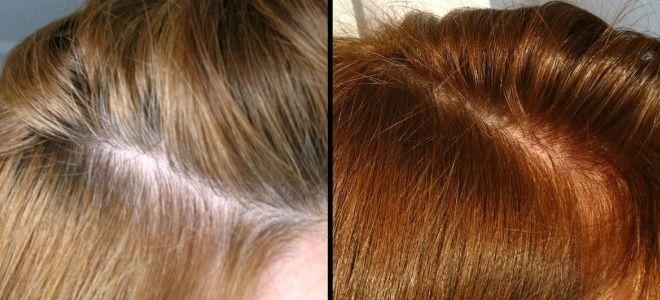 Варианты окрашивания седых волос четыре