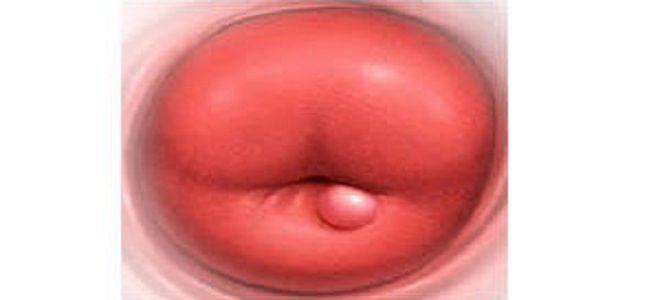 лейкоплакия шейки матки что это