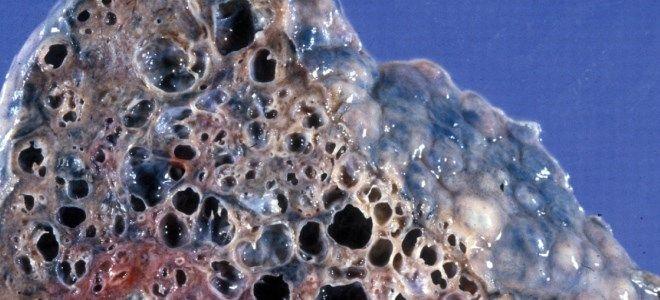 альвеолит лечение
