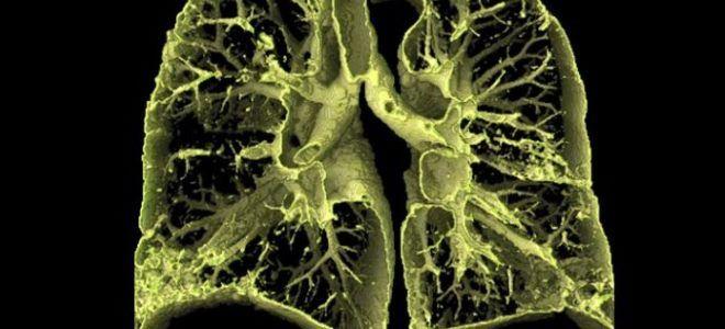 альвеолит симптомы