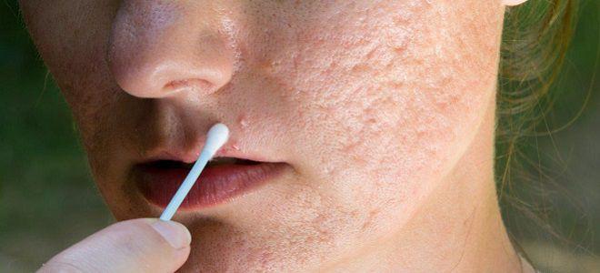Хлоргексидин можно ли протирать лицо от прыщей