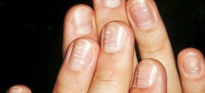 белые полоски на ногтях рук