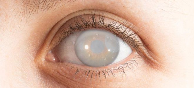 тауфон от катаракты