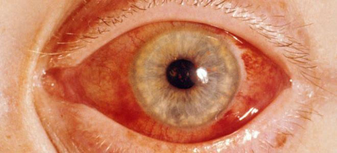 тауфон от глаукомы
