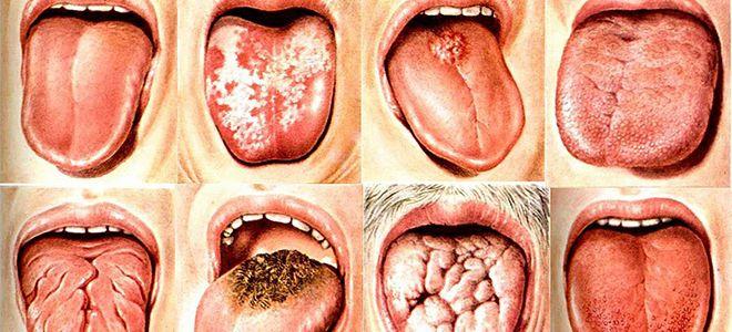 злокачественные опухоли языка