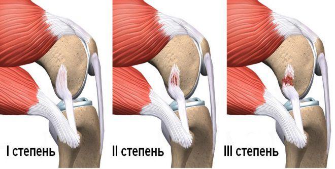 Что нужно делать при растяжении мышц ноги