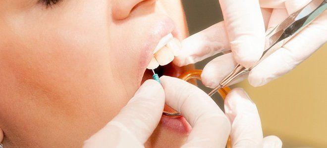 почему болит зуб после установки коронки