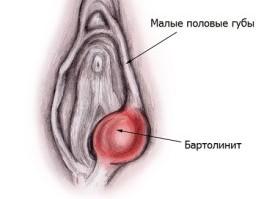 Внутренности вылезли из вагины — 11