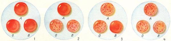 Как можно определить группу крови