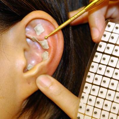 точка в ухе для похудения