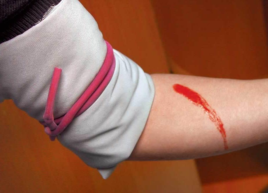Признак артериального кровотечения цвет крови