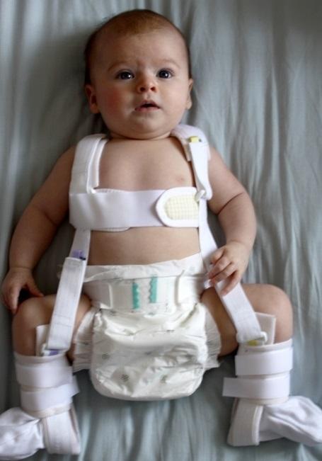 Дисплазия тазобедренных суставов у детей распорки реферат суставной синдром