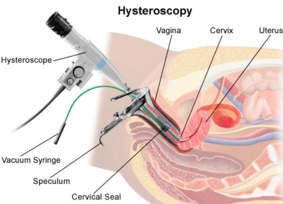 Симптомы после гистероскопии