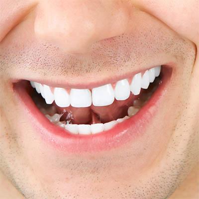 Как делают капы для отбеливания зубов
